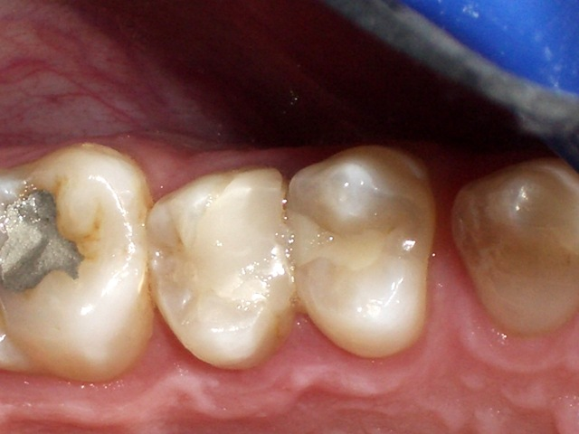 Composite restorations in posterior teeth, interdental zone