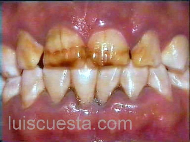 Veneers on tainted teeth with periodontal disease