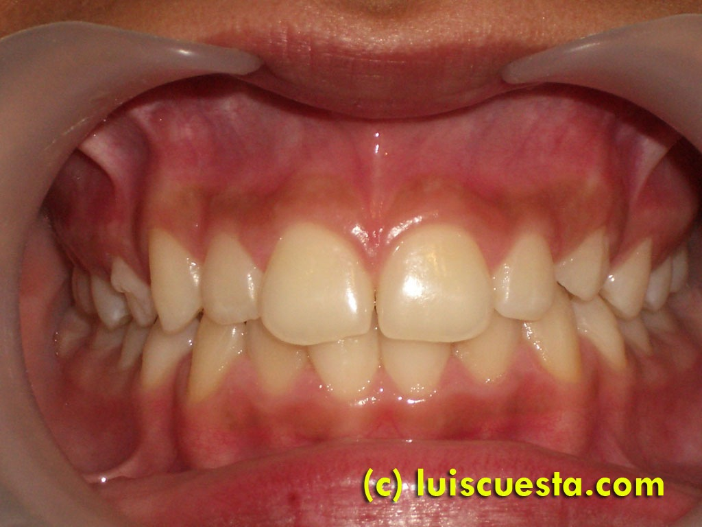 Labial frenectomy with electro-scalpel