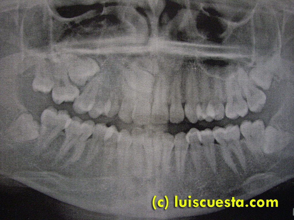 Impacted cuspid, palatal extraction