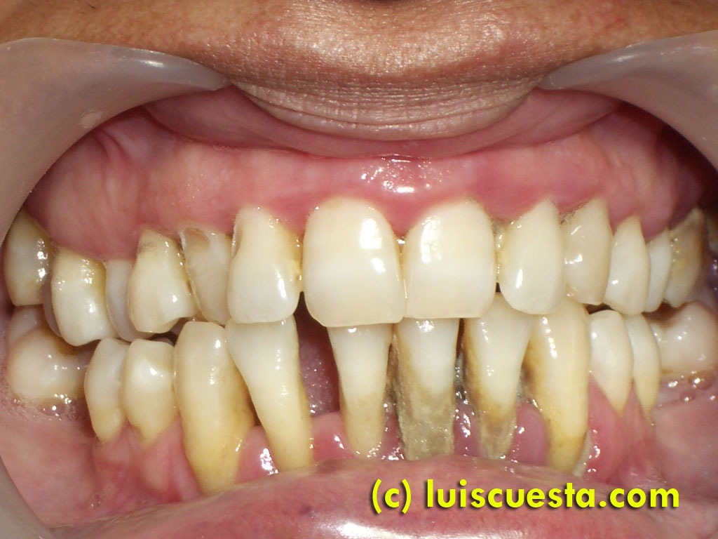 Single implants and orthodontics in lower jaw (II), with periodontal disease.