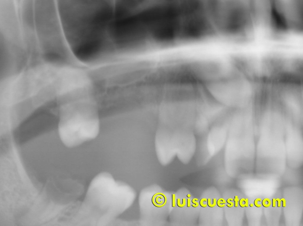 lateral sinus lift, bone split and impacted cuspid extraction