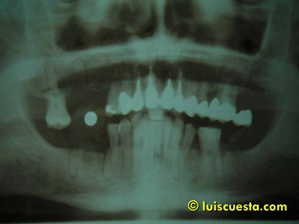 Fixed ceramic oral rehabilitation on 16 implants