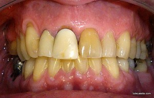 Front view, preo-operatory dental implant surgery