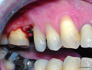 "implant exposure surgery, tissue buccally displaced. Healing abutment 3,75x12,5"" ICX-Templant (internal hexagon)"