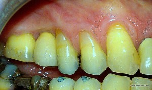 ICX-Templant (internal hexagon) abutment. metal line gum level  gingival retraction