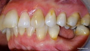 soft tissue management around dental implants lateral view