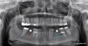 soft tissue management around dental implants diagnose X-ray