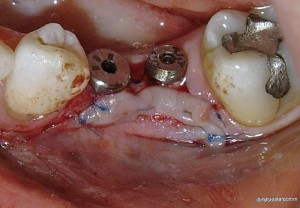 soft tissue management surgery around dental ICX implants lateral view bone level healing abutments