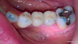 abutment implant ICX crown