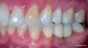 distalization molar implant mesial tipping crown
