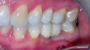soft tissue management abutment implant ICX crown