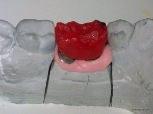 distalization molar implant mesial tipping wedge design cast model