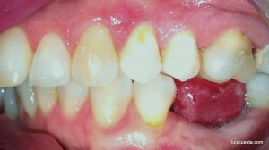 distalization molar implant mesial tipping wedge design open bite