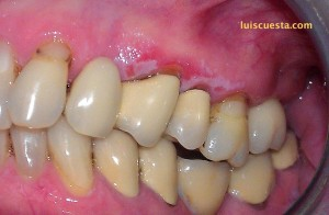 ICX internal hexagon cone dental implant crown one year after buccal view